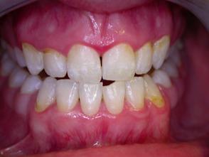 bělení zubů - po zákroku