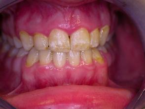 bělení zubů - před zákrokem