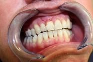 stomatologická operace po zákroku