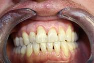 stomatologická operace - před